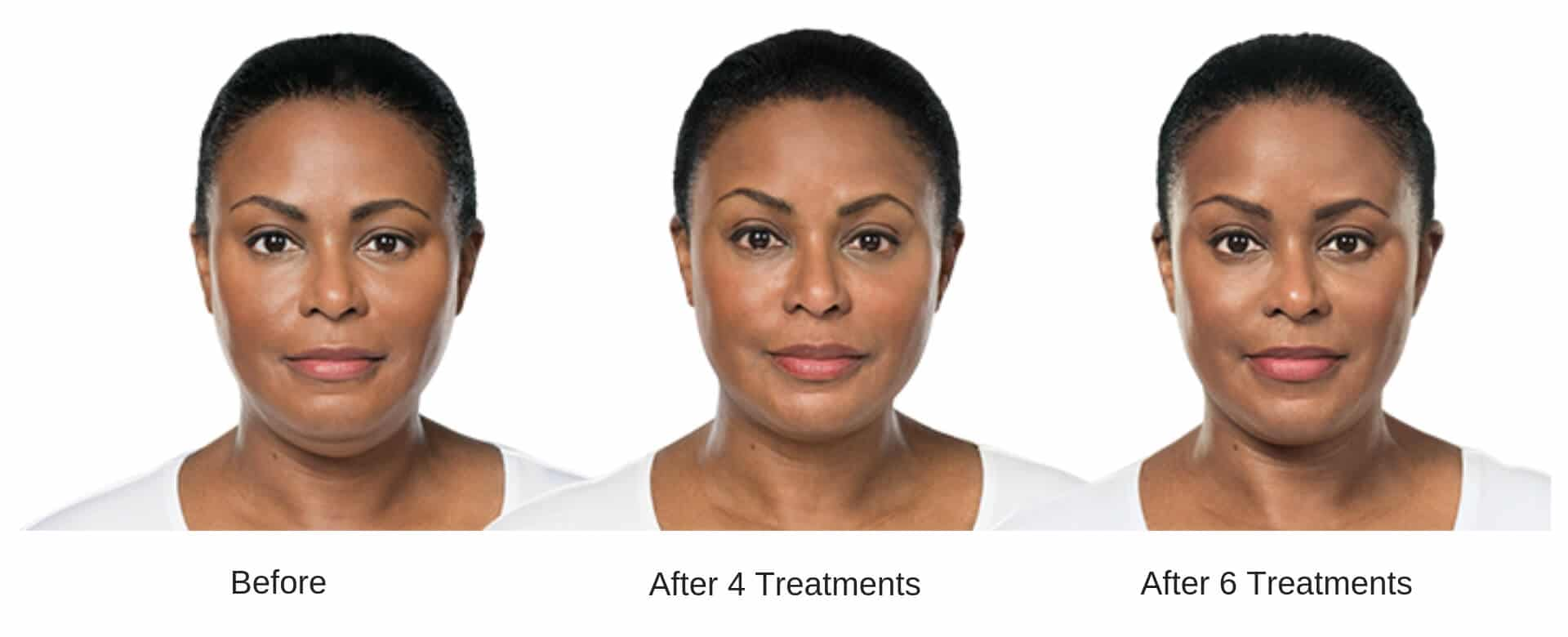 Womans before and after 6 treatment results from Kybella.