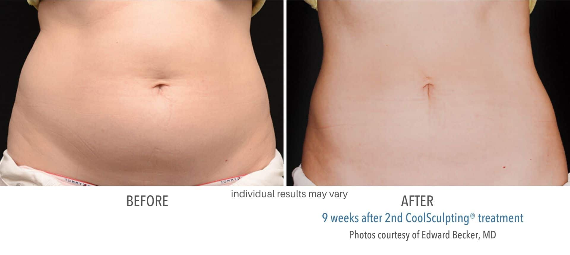 coolsculpting before and after stomach female