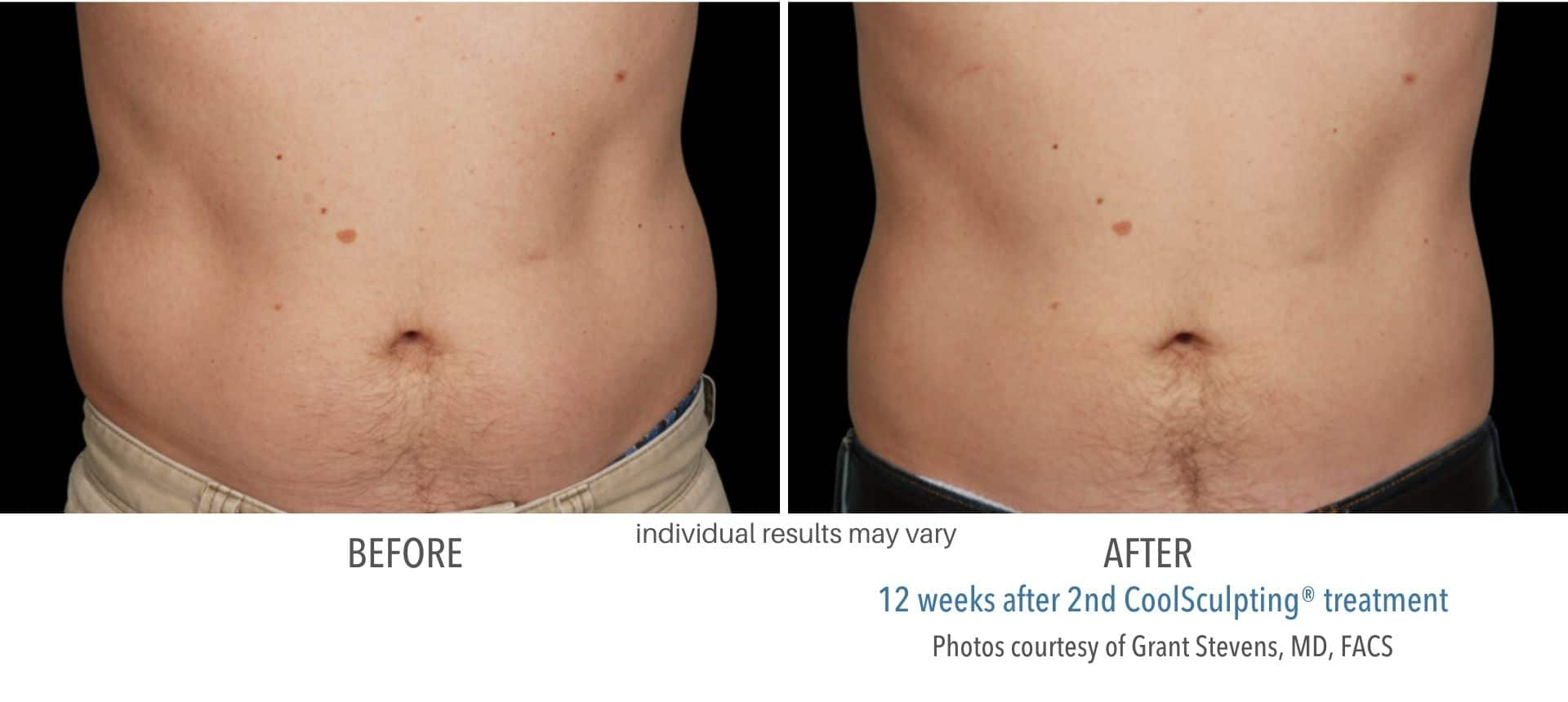 coolsculpting before and after stomach male