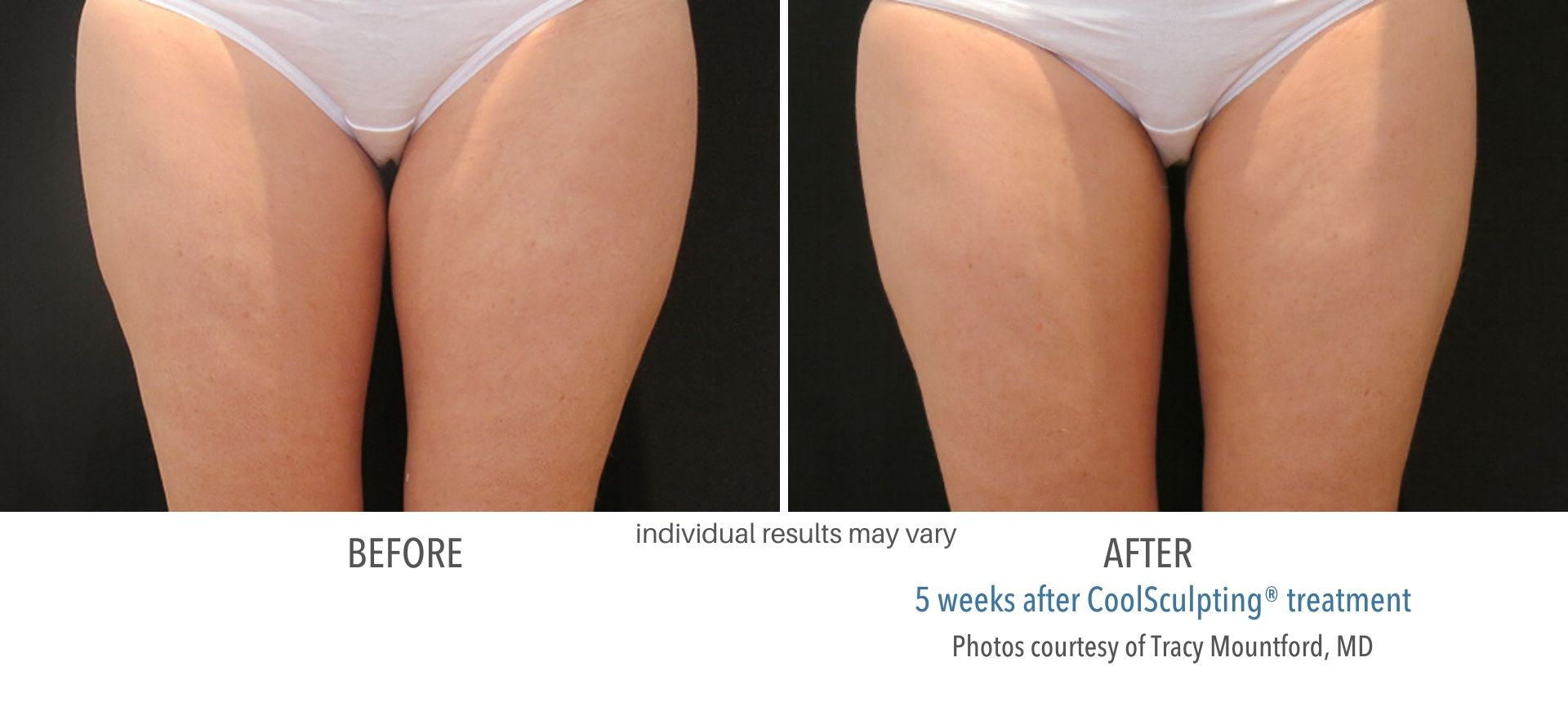 coolsculpting before and after inner thighs